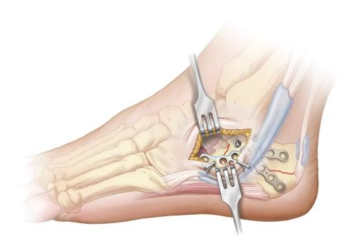 Screws being inserted through Sinus Tarsi Plate