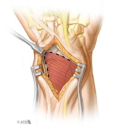 Identification of the pronator quadratus muscle