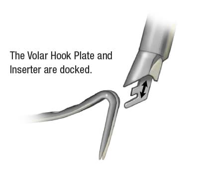 Docking of the Volar Hook Plate and Inserter tool