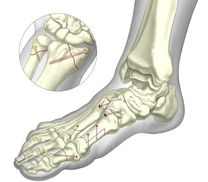 Fractures in foot with cannulated screws fixated to them