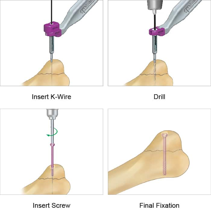 Step-by-step surgical technique for the cannulated screw system