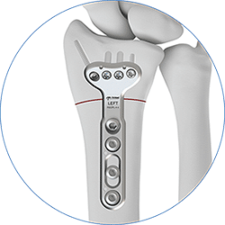 TriMed's Radial Osteotomy Plate fixated to radius bone