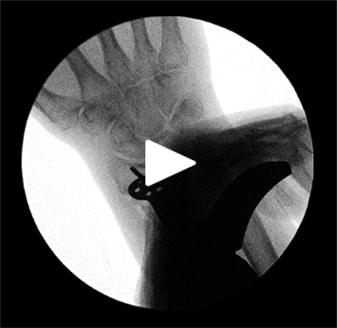 coronal malalignment x-ray
